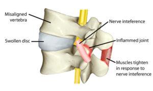 Subluxation Diagram